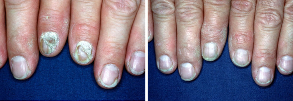 Longitudinal nail Pigmentation