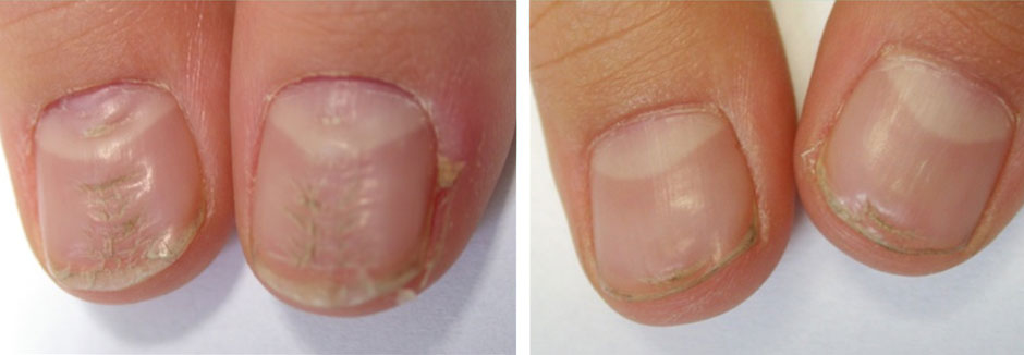 Contact » Hair & Nail B12 Deficiency Nails